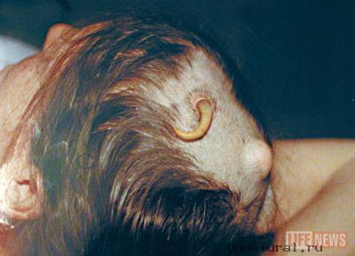 Образования на коже головы: высыпания, наросты