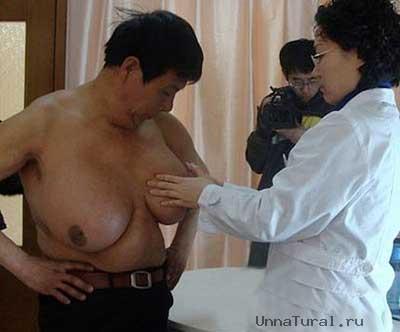 guo Гуо Фенг   обладатель самой большой мужской груди в мире