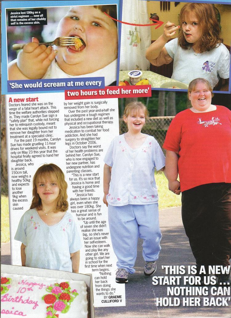 jessica leonard3 Самый толстый ребенок в мире похудел на 140кг