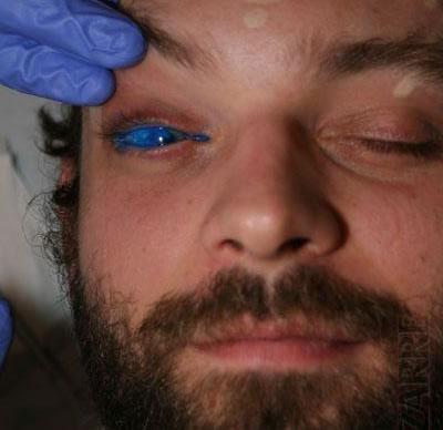 21 Татуировка на глазном яблоке!