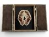 thumbs l n 17 Уроки художественной анатомии от Лизы Нильсон