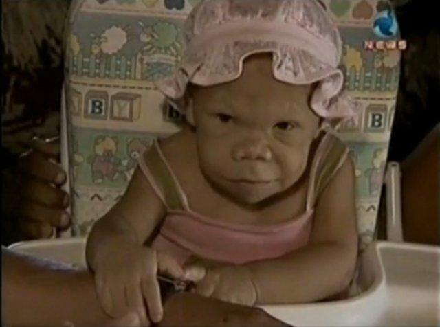 maria audete 5 30 летняя бразильянка, которая выглядит как 9 месячный ребенок