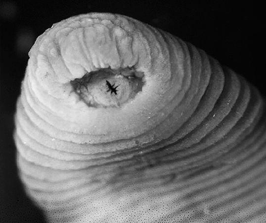 страшные паразиты в организме человека