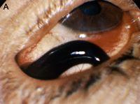 tyrannobdella 2 Топ 13. Самые страшные паразиты в мире