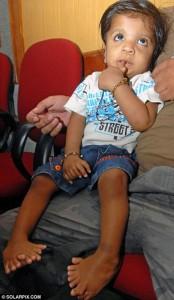 Akshat Saxena 1 174x300 Мировой рекорд побил индийский ребенок, родившийся с 34 пальцами