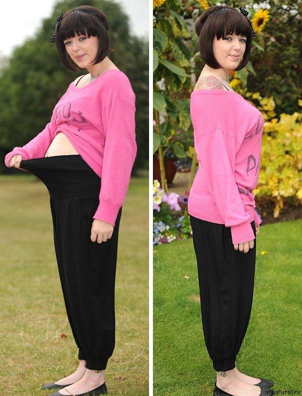 Kerri Dowdswell  2 Я не беременна: после еды живот 23 летней англичанки раздувается как воздушный шар