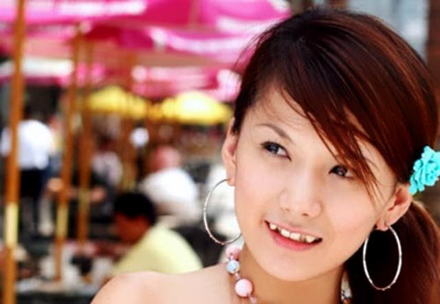 yaeba 4 Йоба: кривые зубы это модно
