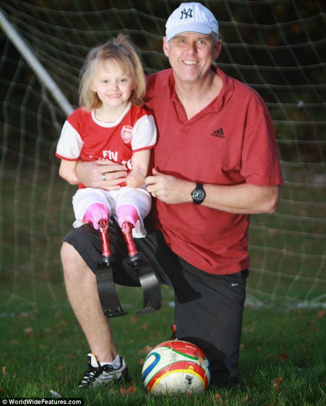 Ellie Challis 4 Никогда не сдавайся: 5 летняя Элли стала первым ребенком в мире, освоившим паралимпийские бионические лопасти