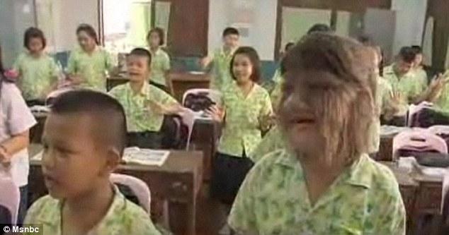 Supatra 1 Самая волосатая девочка в мире