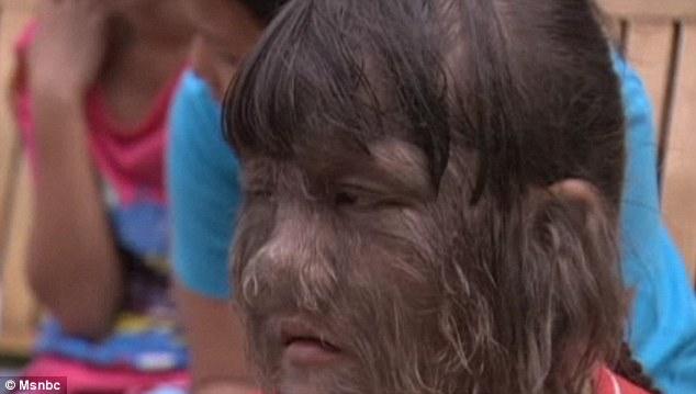 Supatra 2 Самая волосатая девочка в мире