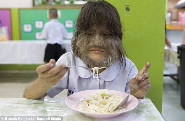 Supatra 5 Самая волосатая девочка в мире
