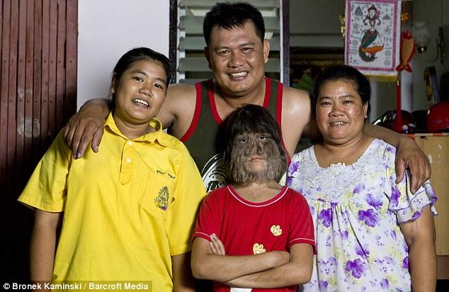 Supatra 6 Самая волосатая девочка в мире