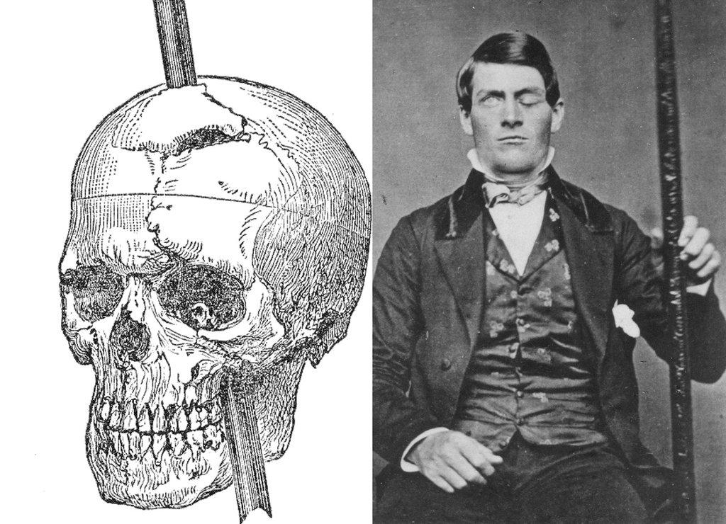 f16 Викторианский фотошоп: странные фотографии XIX века